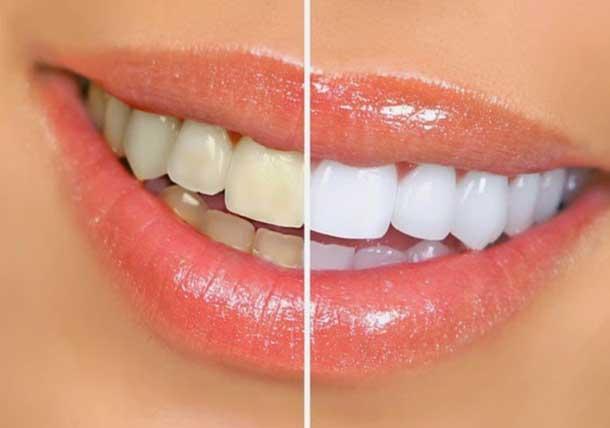 5 Receitas caseiras para clarear os dentes! Resultam mesmo!
