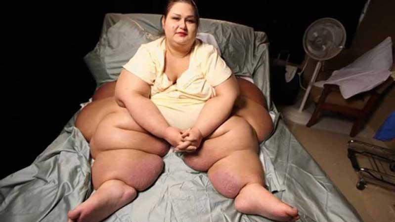 Ela sofria de obesidade mórbida, mas quando há força de vontade, tudo se consegue!