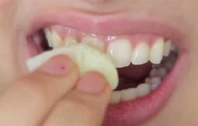 Arquivo De Branquear Dentes Muitofixe Pt