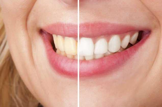 Truque revolucionário para ficar com os dentes brancos em menos de 3 minutos!