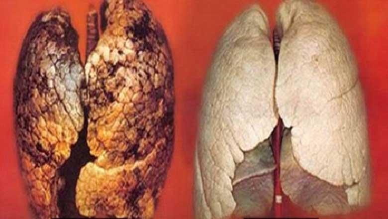 Aprende como podes limpar os pulmões rapidamente e de forma natural!