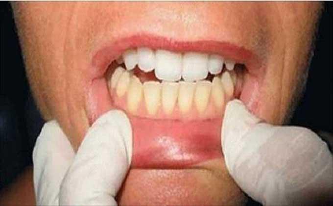 Conhece o melhor e mais barato branqueamento dentário caseiro! Usado pelos famosos!