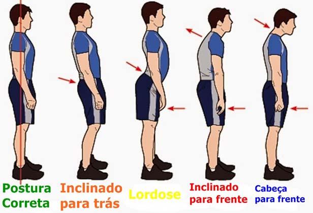 Resultado de imagem para como manter a postura ereta
