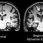 Muito importante saberes isto! Com este teste poderás ver se estás com Alzheimer ou algum familiar teu!
