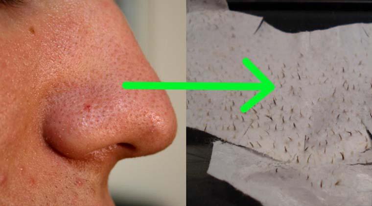 Livra-te dos pontos negros com estes 2 simples ingredientes! O teu rosto vai ficar limpo!
