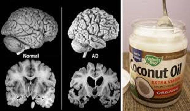 4 Colheres de óleo de coco vão mudar a vida a quem sofre de Alzheimer! Afirma médica!