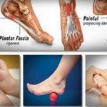 Estes 5 simples truques vão aliviar a dor nas costas, joelhos e tornozelos rapidamente!