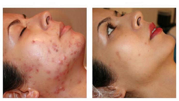 Acaba com o acne e as espinhas de uma vez com estes 4 tratamentos caseiros!