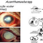 Usas lentes de contacto? Tem muito cuidado com este terrível parasita! É um perigo desconhecido pela maioria!