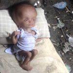 Ela encontrou este bebé no lixo… Mas 2 anos mais tarde… Impressionante no que se tornou…