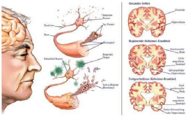 É importante que conheças os principais sintomas de Alzheimer e como o prevenires de forma natural!