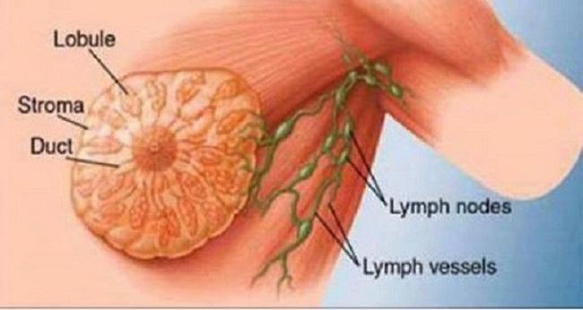 É uma das principais causas do cancro da mama e nós consumimos quase todos os dias!