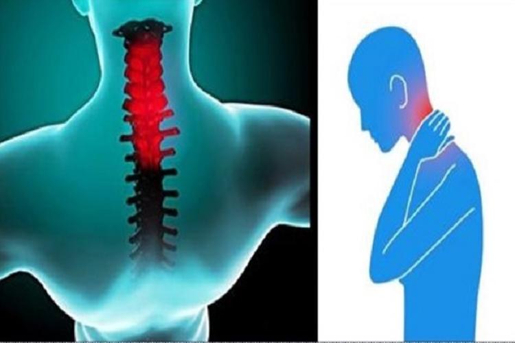 Este truque simples cura qualquer torcicolo em apenas 30 segundos! Quem diria que é tão fácil!