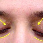 Se isto aparecer nos teus olhos tem cuidado! A razão é preocupante e é preciso estar alerta!