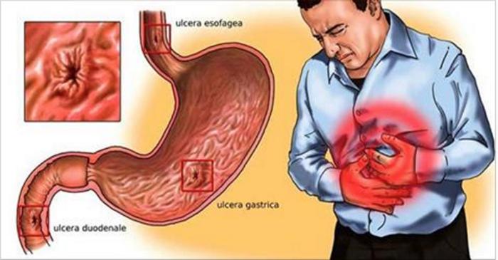 Cura o estômago em poucos dias com estes remédios caseiros! Acaba com a Azia, Refluxo, Úlceras e Gastrite!