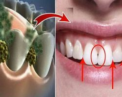 limpar_dentes