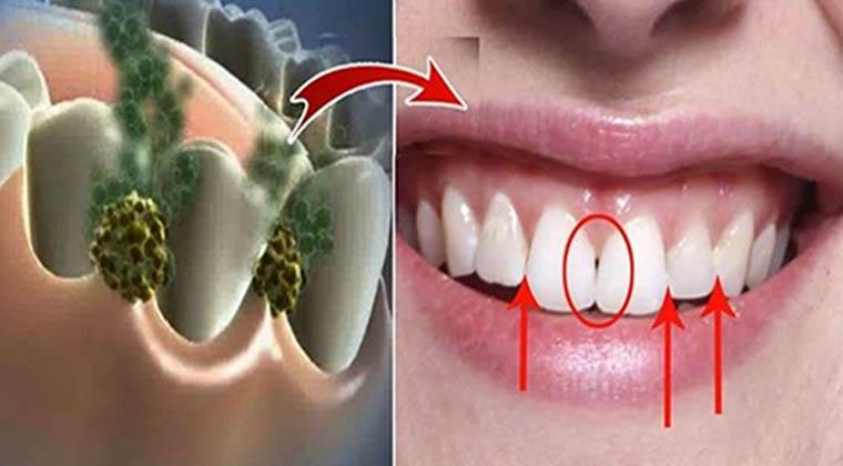 Acaba com o mau hálito em apenas 5 minutos! Isto vai destruir todas as bactérias que causam o mau hálito!