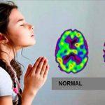 A oração realmente tem o poder de curar doenças! Confirmam cientistas!
