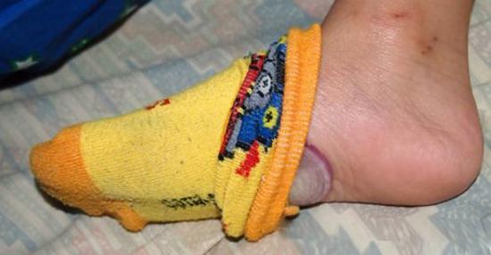 Sabes o que acontece se dormires com cebola nos pés? Depois de saberes isto não vais querer outra coisa!