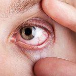 Muitos nem imaginavam, mas os olhos dão-nos sinais sobre a nossa saúde! É muito importante que os conheças!