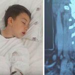 Esta criança sentiu uma enorme dor de estômago após comer um hambúrguer… No hospital os médicos descobriram o impensável!