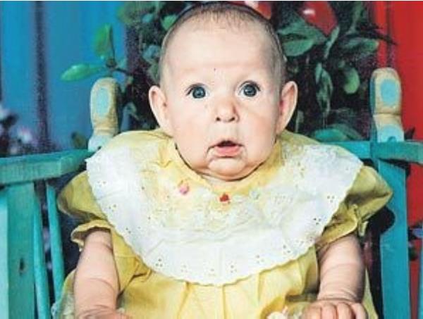 Quando viu o rosto da filha recém-nascida, o pai assustou-se e abandonou-a… Mas 21 anos depois… O que aconteceu… É realmente um milagre!
