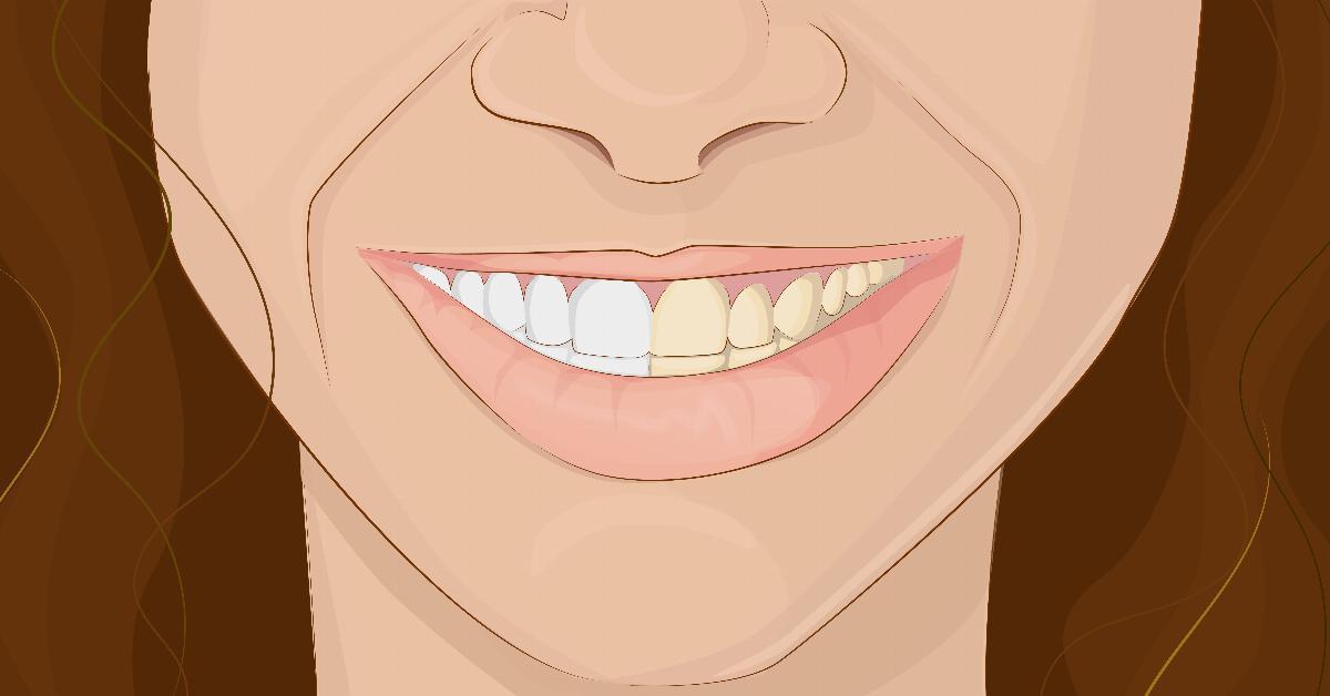 Se fizeres isto antes de escovar os dentes podes poupar tempo no dentista! É simplesmente fantástico!