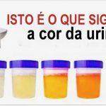 É isto o que a cor da urina diz sobre a tua saúde! Sabe o que te pode estar a prejudicar! É importante!