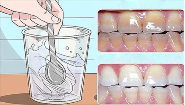 Usa apenas 1 colher desta receita e terás os dentes brancos com que sempre sonhaste!