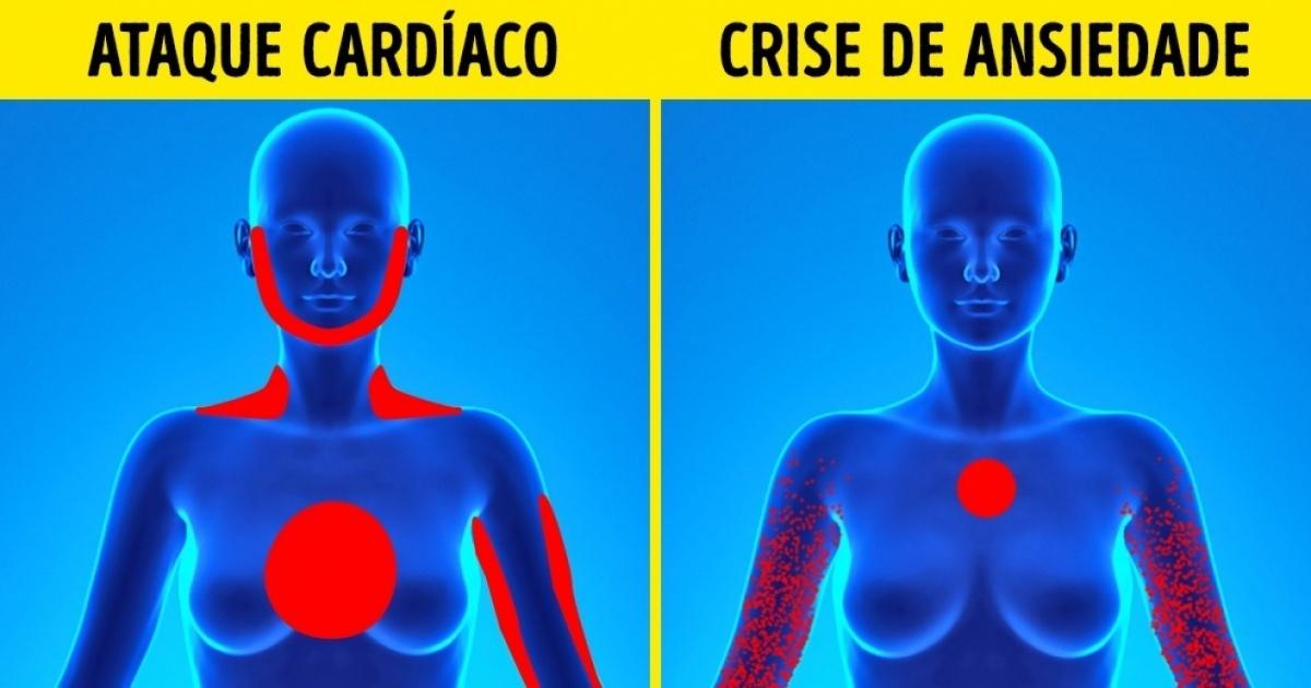 É muito importante que conheças a diferença entre um ataque cardíaco e uma crise de pânico! Pode fazer toda a diferença!