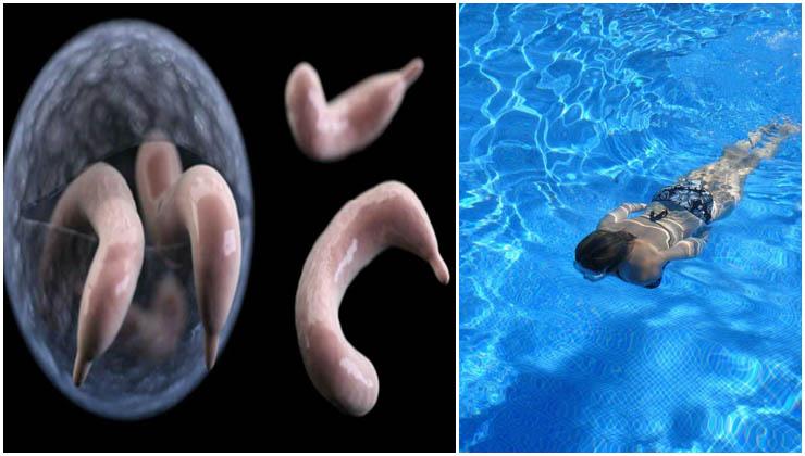Esta doença é perigosa e muitas pessoas a contraem quando cometem estes erros nas piscinas!