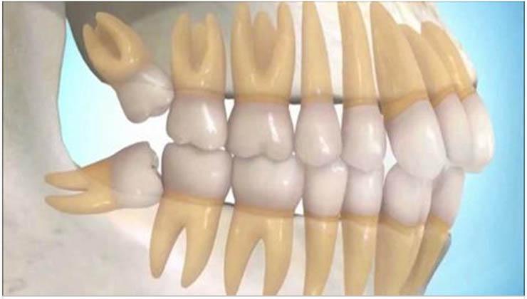 Extraíram os teus dentes do siso? Esse pode ter sido o maior erro que cometeste!