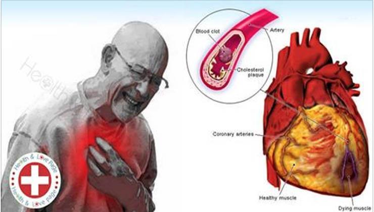 Se mudares isto que muitas pessoas fazem, vais reduzir o risco de ataque cardíaco em 80%!