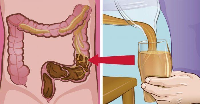 Erros na alimentação podem resultar em 9kg de porcaria acumulada no corpo! Vê como podes salvar o cólon!