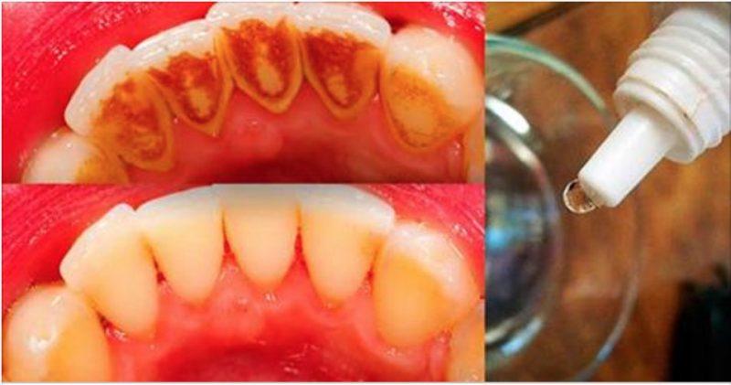 Isto vai eliminar o tártaro dos teus dentes e deixá-los com um branco incrível em muito pouco tempo!