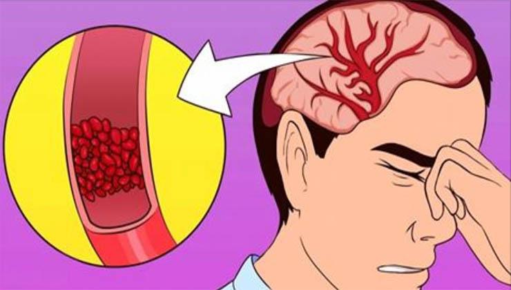 Se tens dores de cabeça frequentes, pouca energia e insónias, o teu problema pode ser este! A falta disto pode provocar…