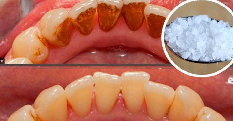 Elimine o tártaro sem precisar ir a um dentista
