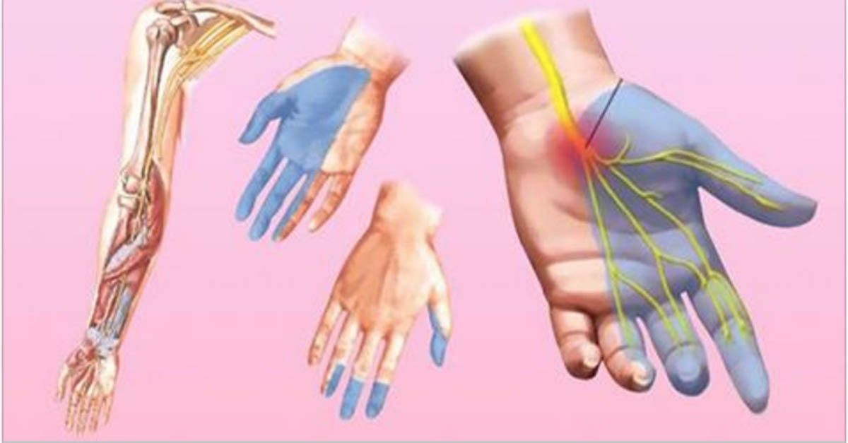 Se as tuas mãos ficam dormentes durante o dia tem atenção! O corpo está a querer avisar-te de algo muito sério!