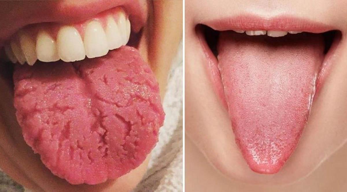 Sinais que a língua dá sobre a nossa saúde…