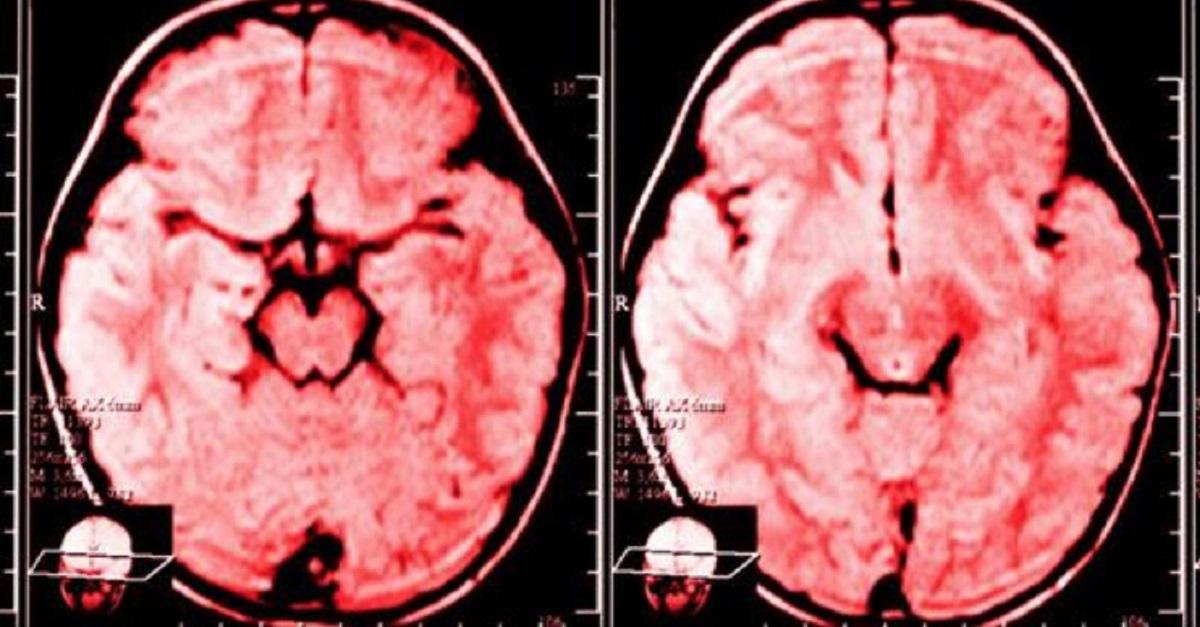 Isto é o que acontece ao cérebro de uma pessoa que reclama muito