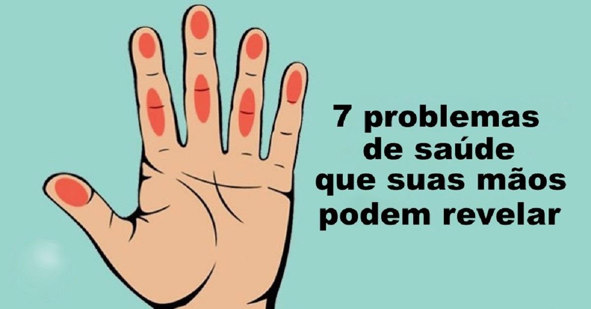As tuas mãos podem revelar estes problemas de saúde